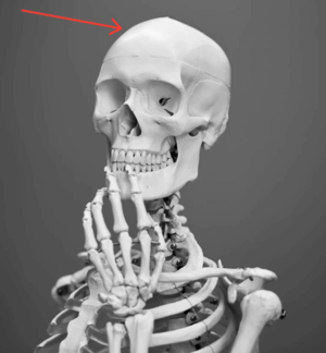 skeleton with an arrow pointing at its head